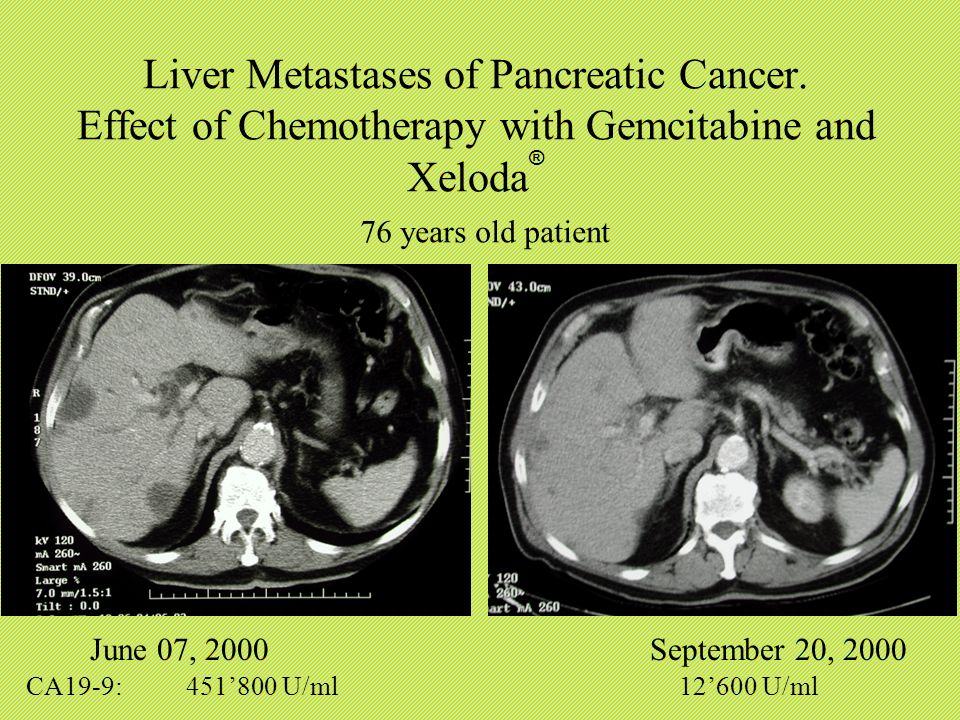 Xeloda and pancreatic cancer