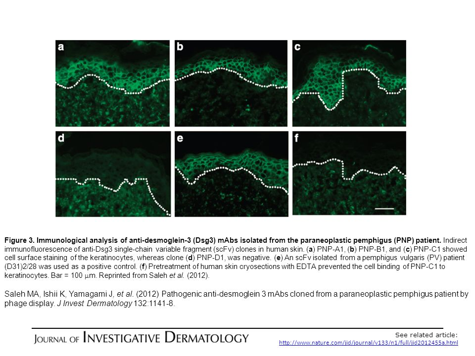 Figure 3. Immunological analysis of anti-desmoglein-3 (Dsg3) mAbs isolated from the paraneoplastic pemphigus (PNP) patient. Indirect immunofluorescence of anti-Dsg3 single-chain variable fragment (scFv) clones in human skin. (a) PNP-A1, (b) PNP-B1, and (c) PNP-C1 showed cell surface staining of the keratinocytes, whereas clone (d) PNP-D1, was negative. (e) An scFv isolated from a pemphigus vulgaris (PV) patient (D31)2/28 was used as a positive control. (f) Pretreatment of human skin cryosections with EDTA prevented the cell binding of PNP-C1 to keratinocytes. Bar = 100 mm. Reprinted from Saleh et al. (2012).