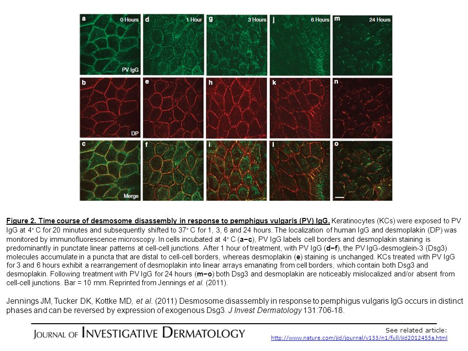 Figure 2. Time course of desmosome disassembly in response to pemphigus vulgaris (PV) IgG. Keratinocytes (KCs) were exposed to PV IgG at 4。C for 20 minutes and subsequently shifted to 37。C for 1, 3, 6 and 24 hours. The localization of human IgG and desmoplakin (DP) was monitored by immunofluorescence microscopy. In cells incubated at 4。C (a−c), PV IgG labels cell borders and desmoplakin staining is predominantly in punctate linear patterns at cell-cell junctions. After 1 hour of treatment, with PV IgG (d−f), the PV IgG-desmoglein-3 (Dsg3) molecules accumulate in a puncta that are distal to cell-cell borders, whereas desmoplakin (e) staining is unchanged. KCs treated with PV IgG for 3 and 6 hours exhibit a rearrangement of desmoplakin into linear arrays emanating from cell borders, which contain both Dsg3 and desmoplakin. Following treatment with PV IgG for 24 hours (m−o) both Dsg3 and desmoplakin are noticeably mislocalized and/or absent from cell-cell junctions. Bar = 10 mm. Reprinted from Jennings et al. (2011).