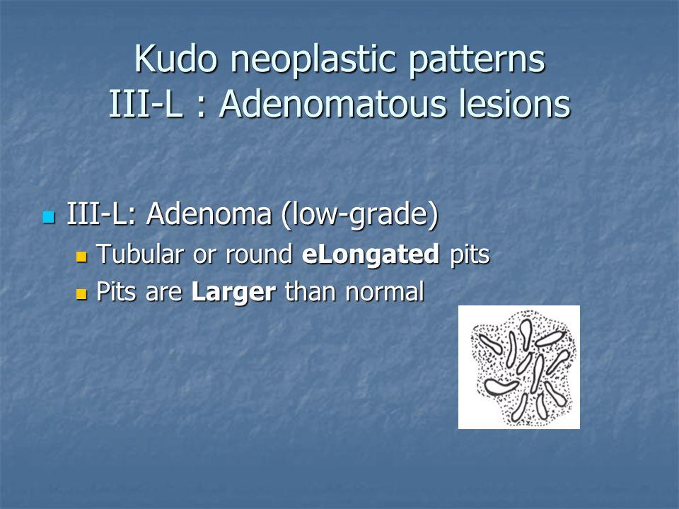 Kudo neoplastic patterns III-L : Adenomatous lesions
