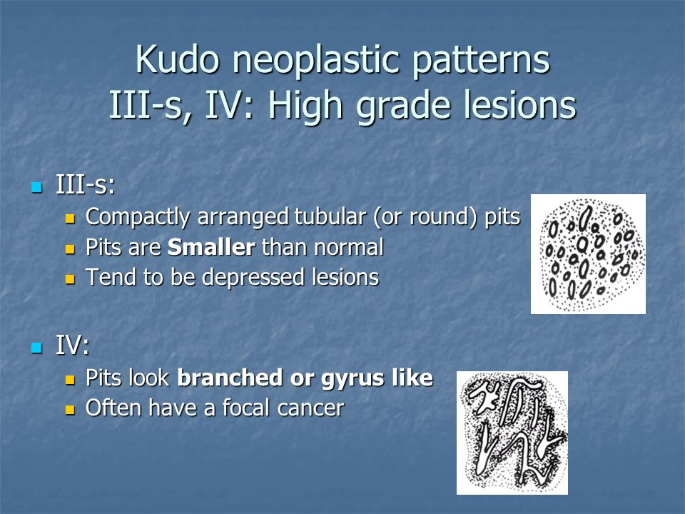 Kudo neoplastic patterns III-s, IV: High grade lesions