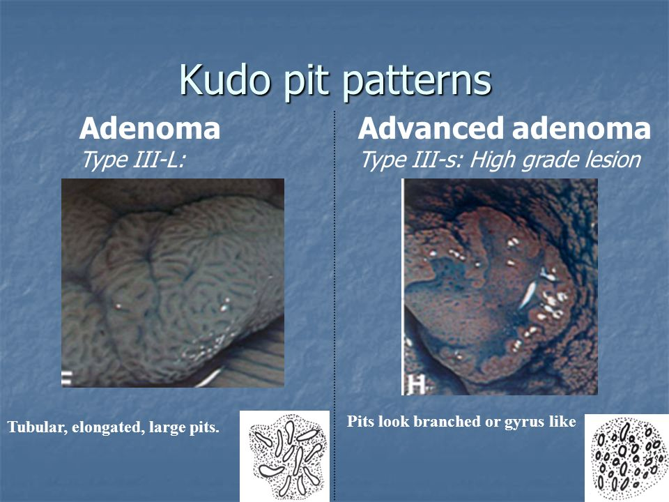 Kudo pit patterns Adenoma Advanced adenoma Type III-L: