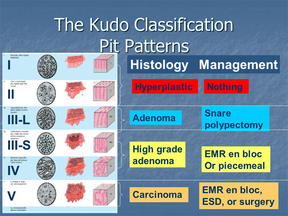 The Kudo Classification Pit Patterns