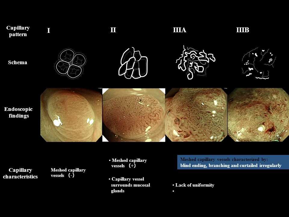 I II IIIA IIIB Capillary pattern Schema Endoscopic findings