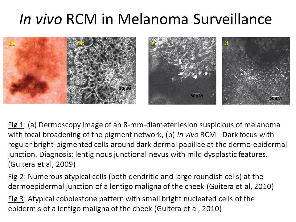 In vivo RCM in Melanoma Surveillance