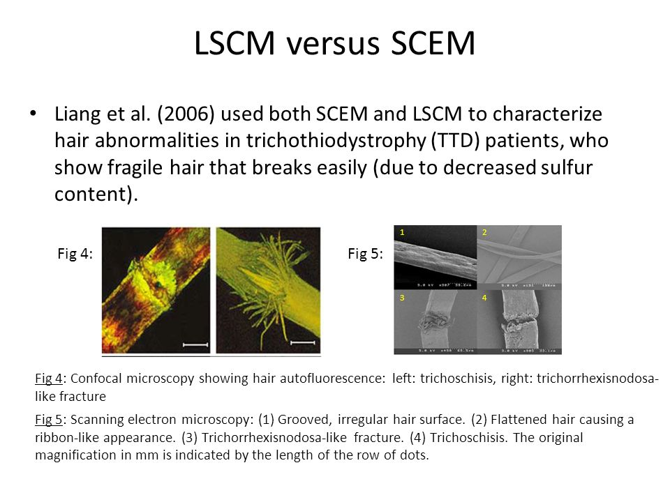 LSCM versus SCEM