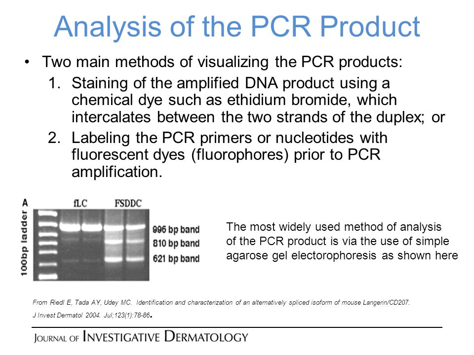 Analysis of the PCR Product
