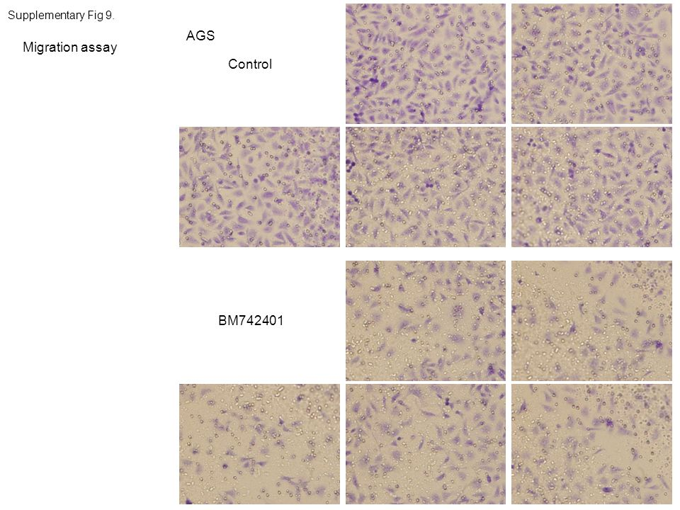 Supplementary Fig 9. AGS Migration assay Control BM742401