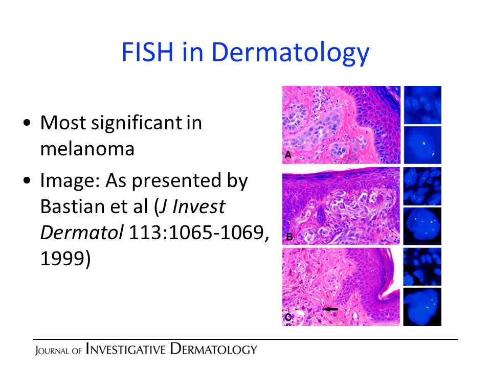 FISH in Dermatology Most significant in melanoma