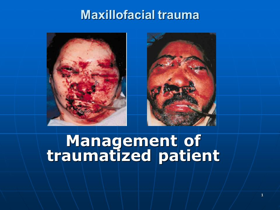 Management of traumatized patient
