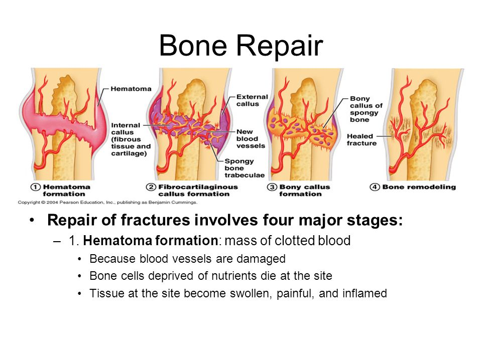 Bone Repair Repair of fractures involves four major stages: