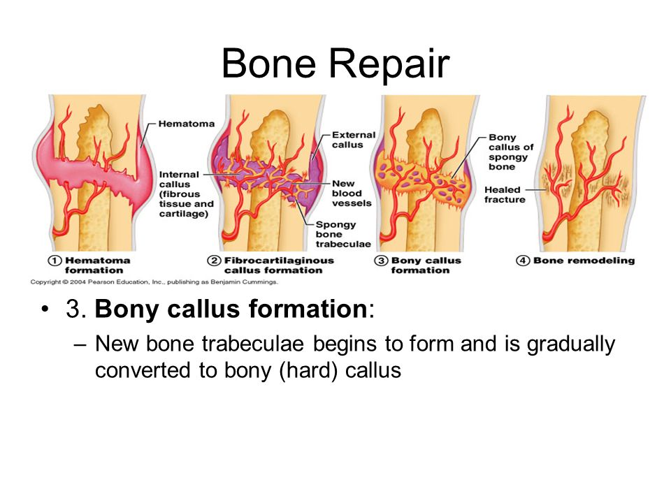 Bone Repair 3. Bony callus formation: