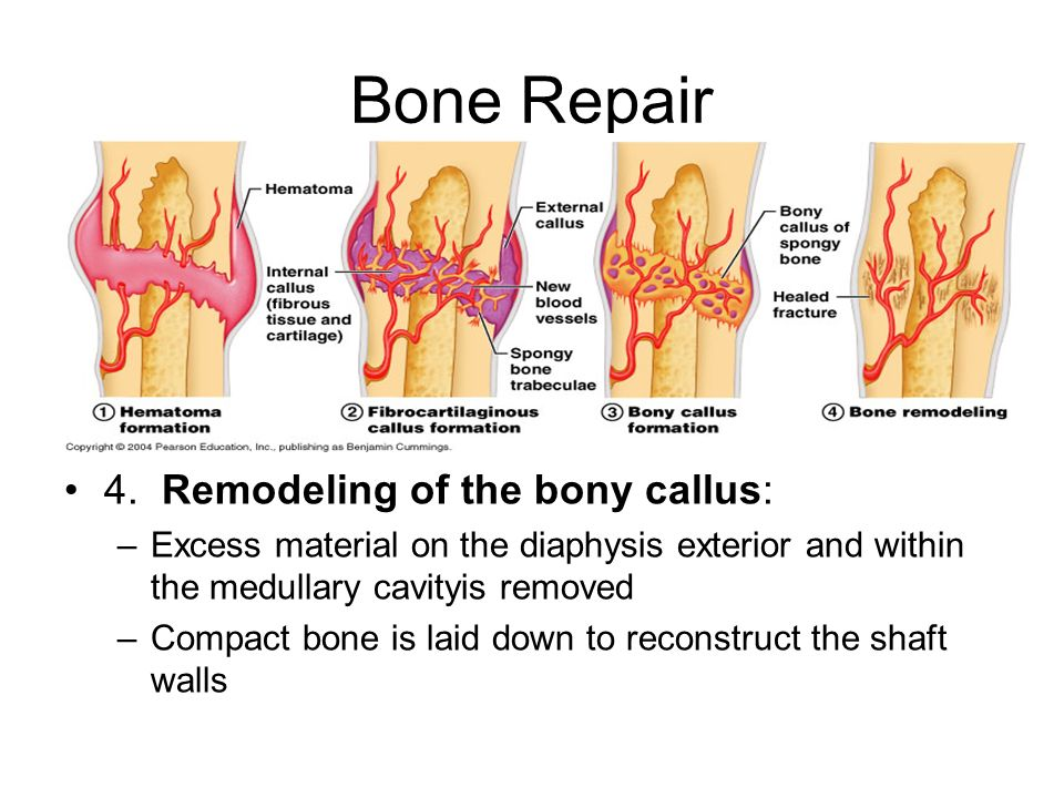 Bone Repair 4. Remodeling of the bony callus: