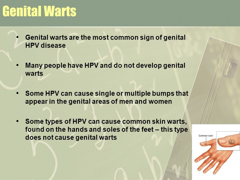 Genital Warts Genital warts are the most common sign of genital HPV disease. Many people have HPV and do not develop genital warts.