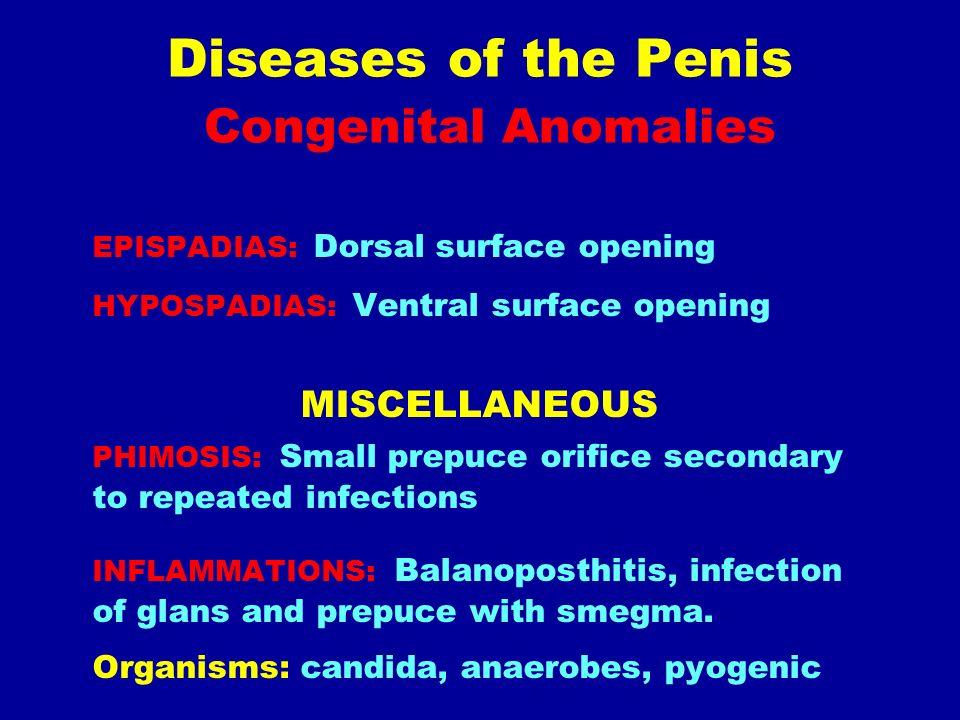 anomalii ale penisului)