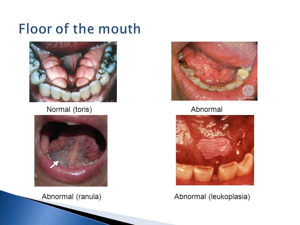 Extra and intra oral examination ppt video online download for Floor of mouth