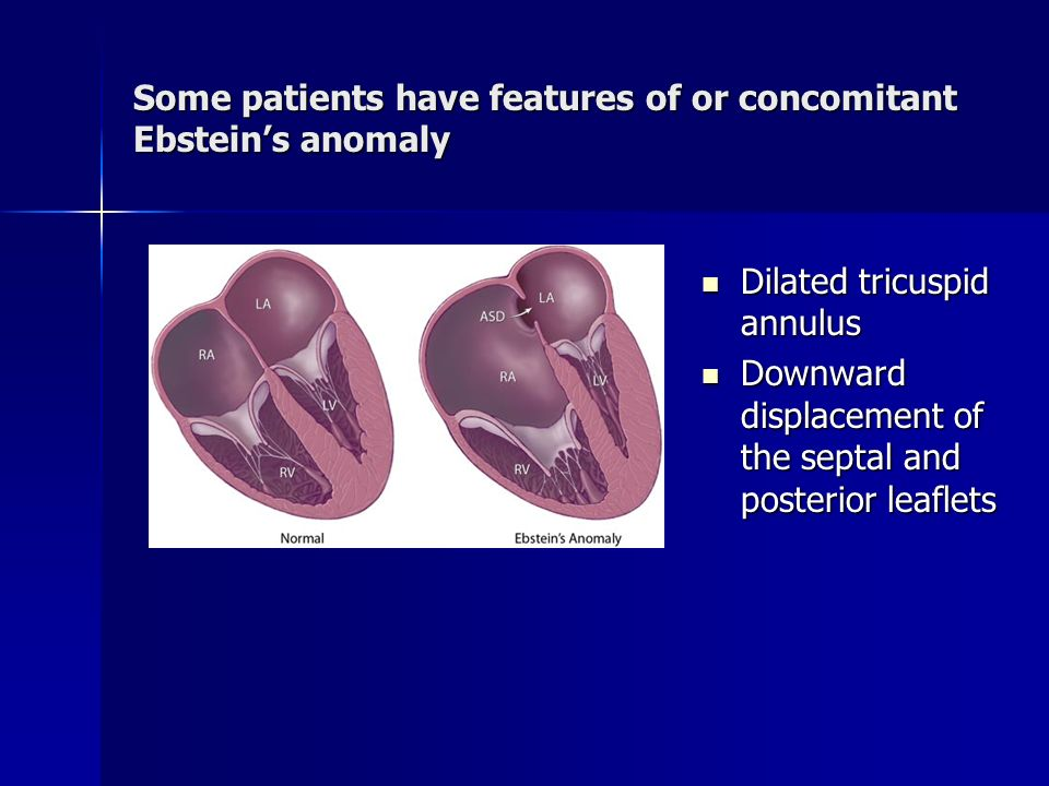 Some patients have features of or concomitant Ebstein's anomaly
