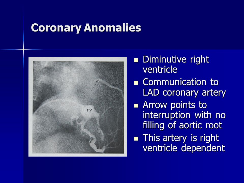 Coronary Anomalies Diminutive right ventricle