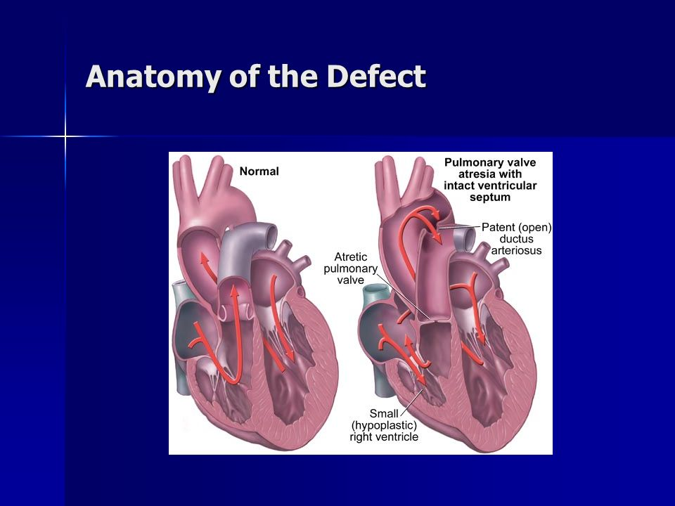 Anatomy of the Defect