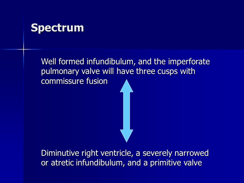 Spectrum Well formed infundibulum, and the imperforate pulmonary valve will have three cusps with commissure fusion.
