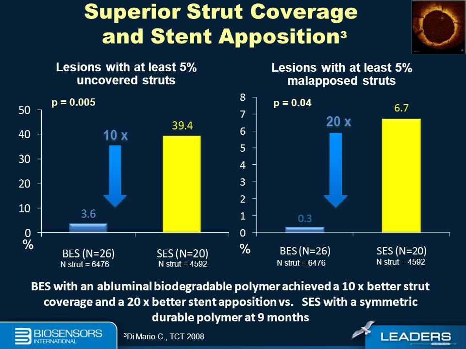 Superior Strut Coverage and Stent Apposition3