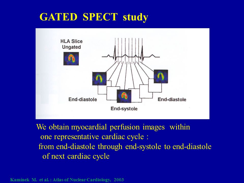 Cardiac magnetic resonance imaging perfusion - Wikipedia