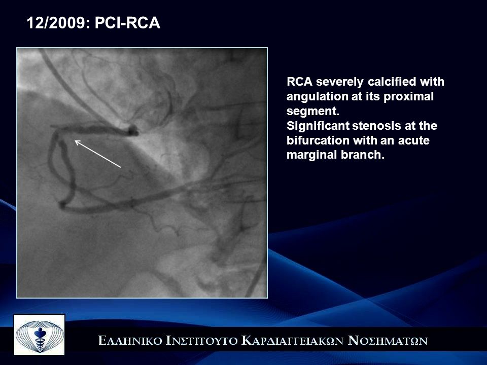 12/2009: PCI-RCA RCA severely calcified with angulation at its proximal segment.