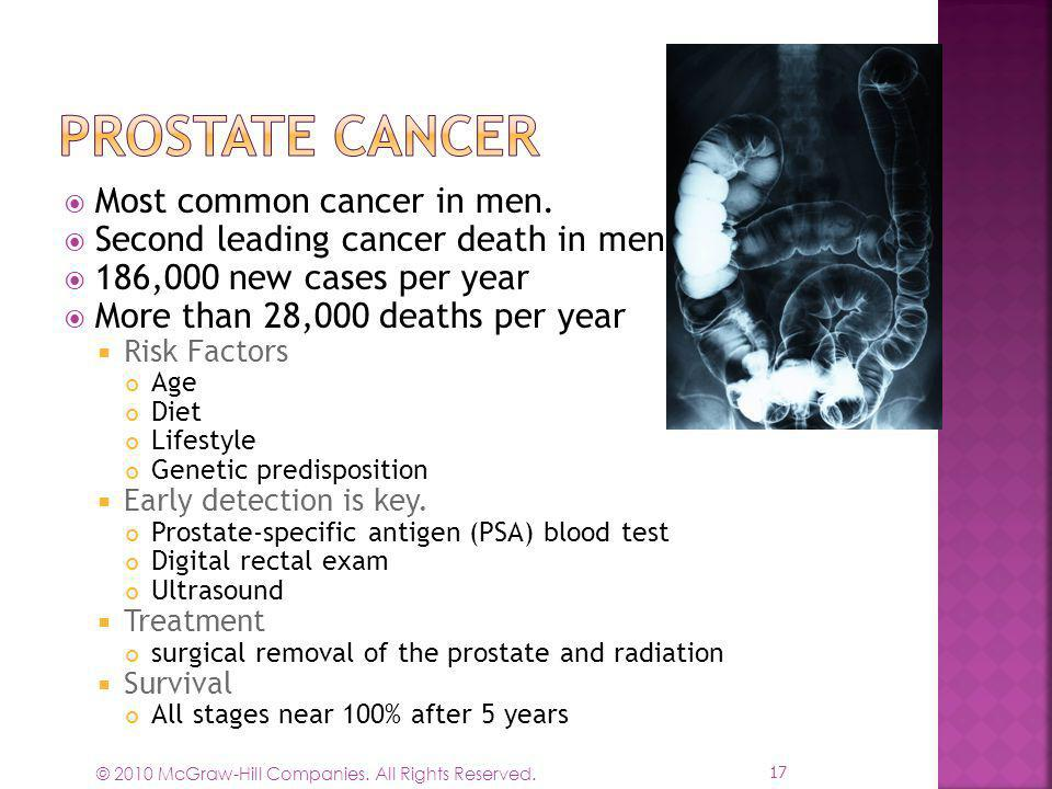 Prostate Cancer Most common cancer in men.