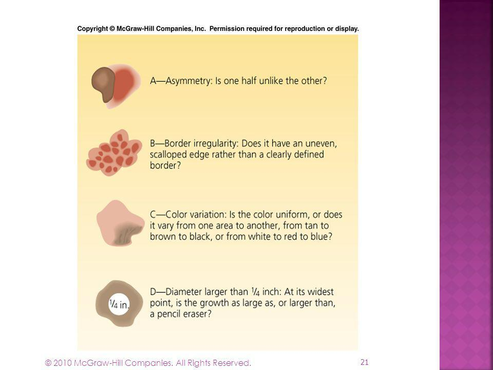 Figure 16-4 The ABCD test for melanoma