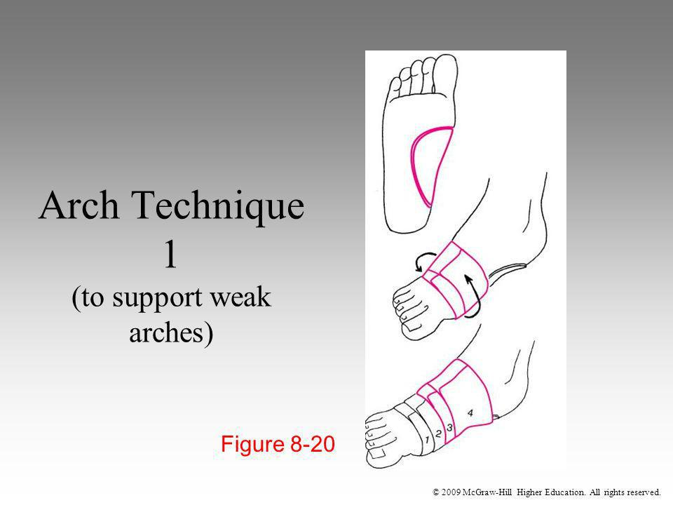 Arch Technique 1 (to support weak arches)