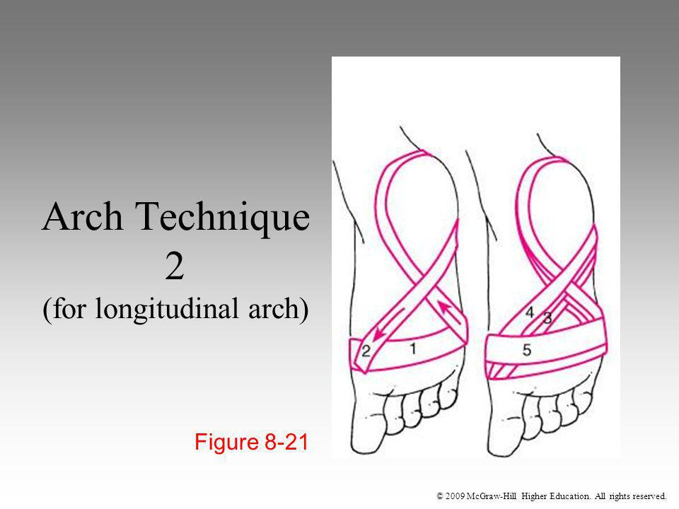 Arch Technique 2 (for longitudinal arch)