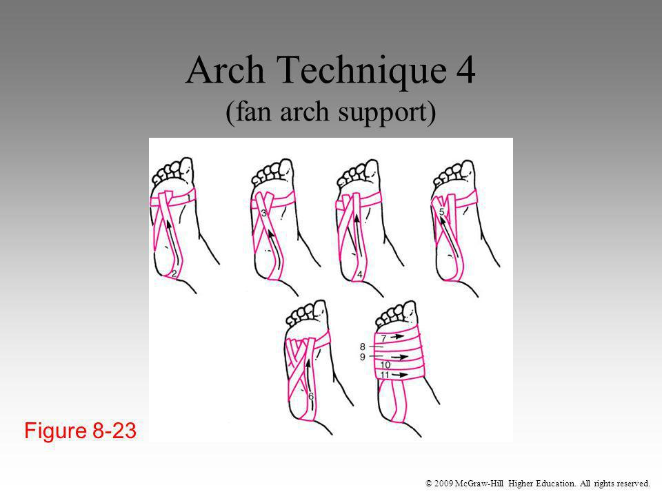 Arch Technique 4 (fan arch support)
