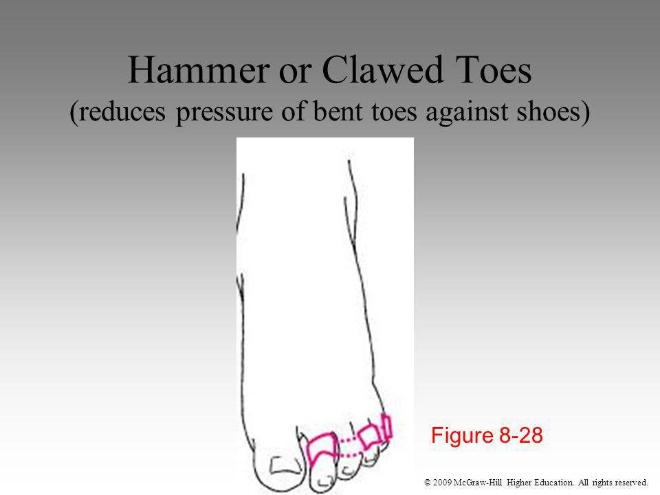 Hammer or Clawed Toes (reduces pressure of bent toes against shoes)