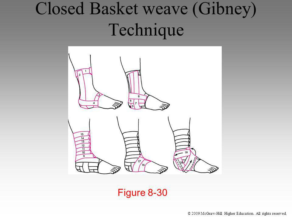 Closed Basket weave (Gibney) Technique