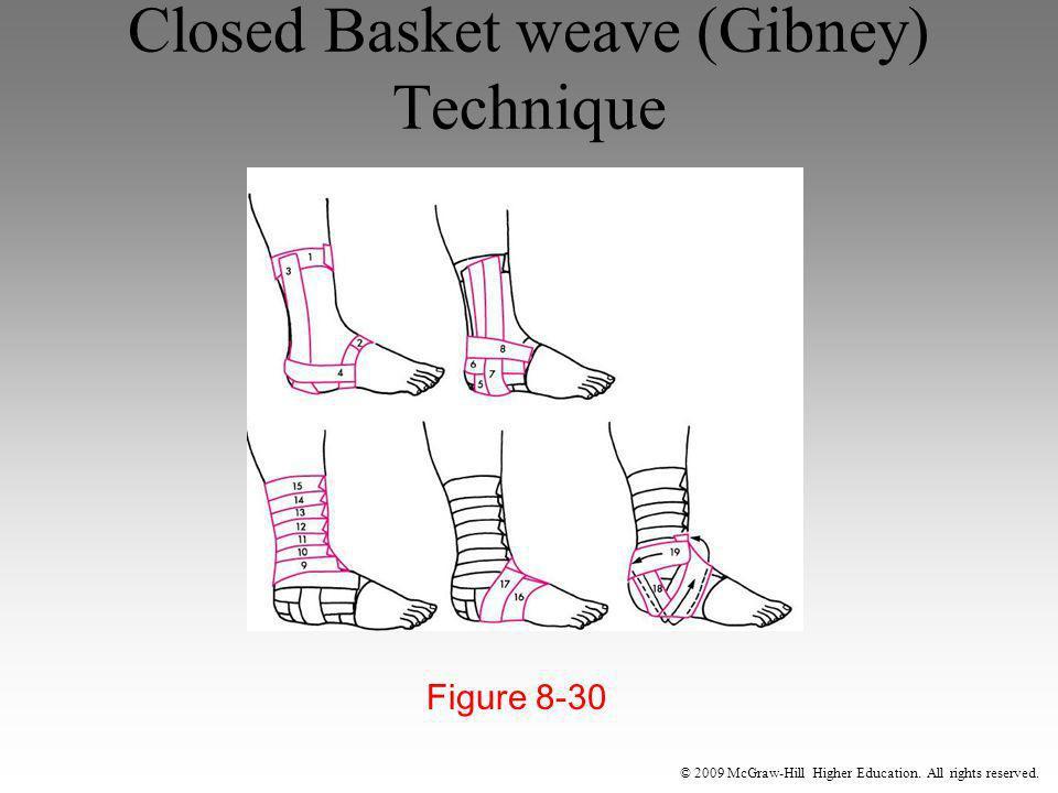 Closed Basket weave (Gibney) Technique