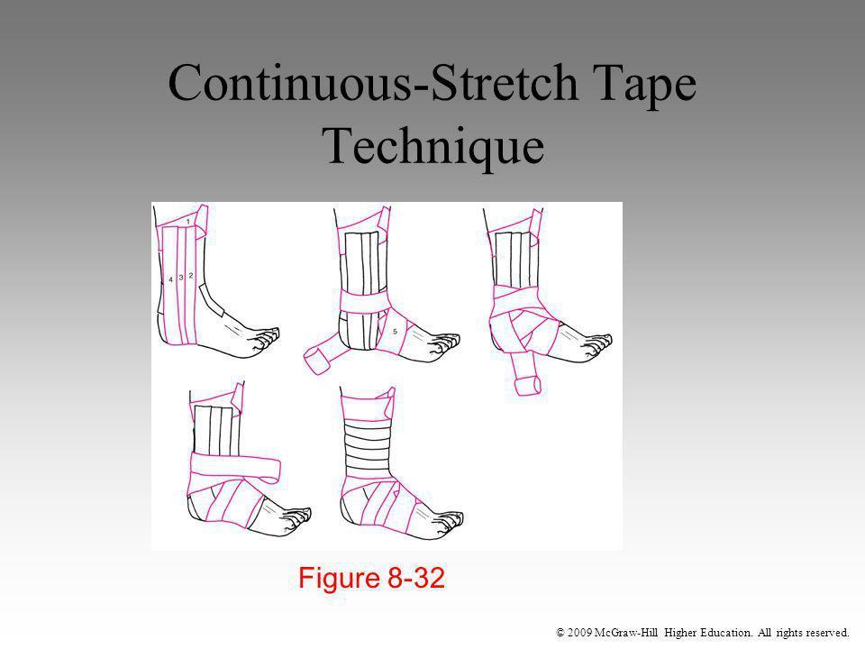 Continuous-Stretch Tape Technique