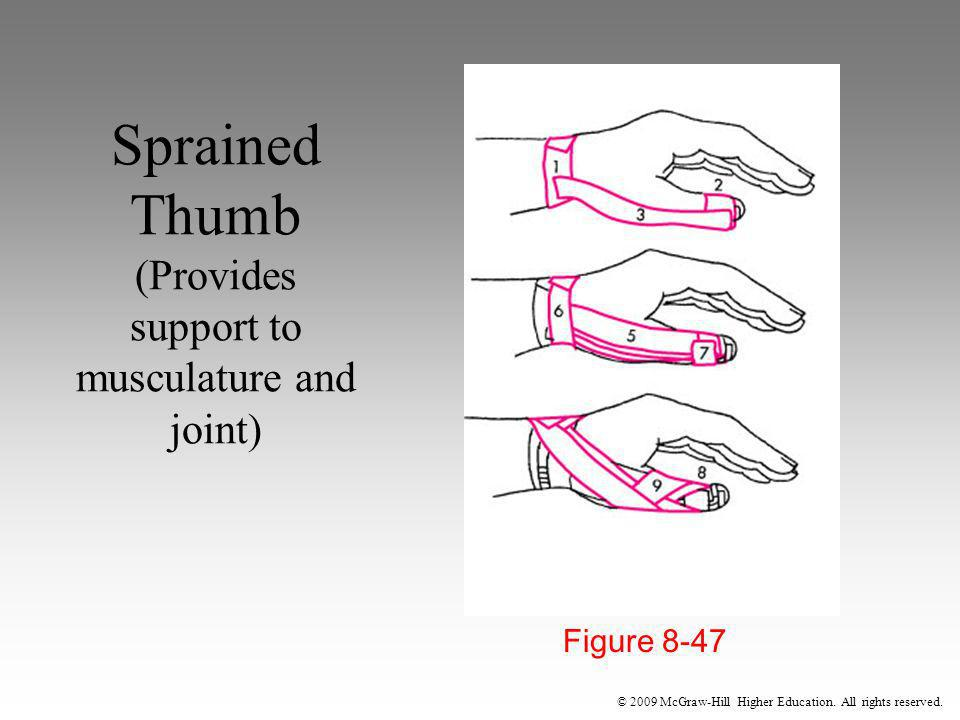 Sprained Thumb (Provides support to musculature and joint)