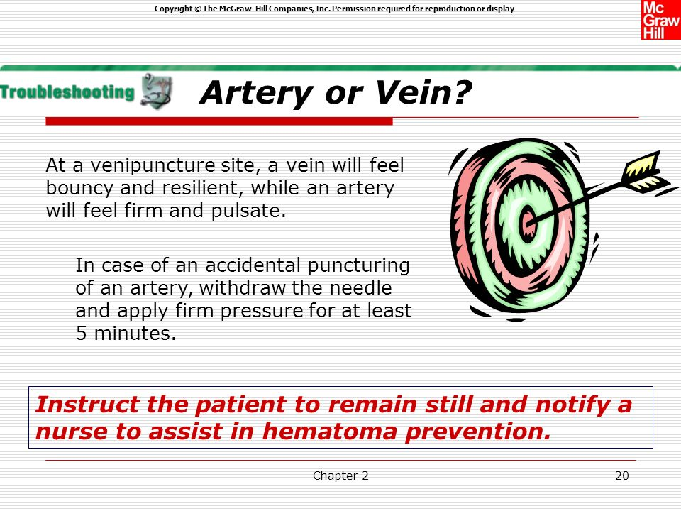 Artery or Vein At a venipuncture site, a vein will feel bouncy and resilient, while an artery will feel firm and pulsate.