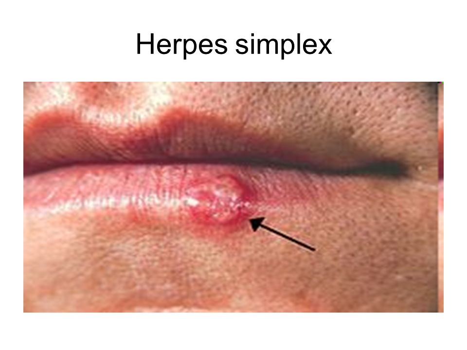 herpes simplex 2 dating site View a picture of herpes simplex virus type 2 and learn facts about sexually transmitted diseases.