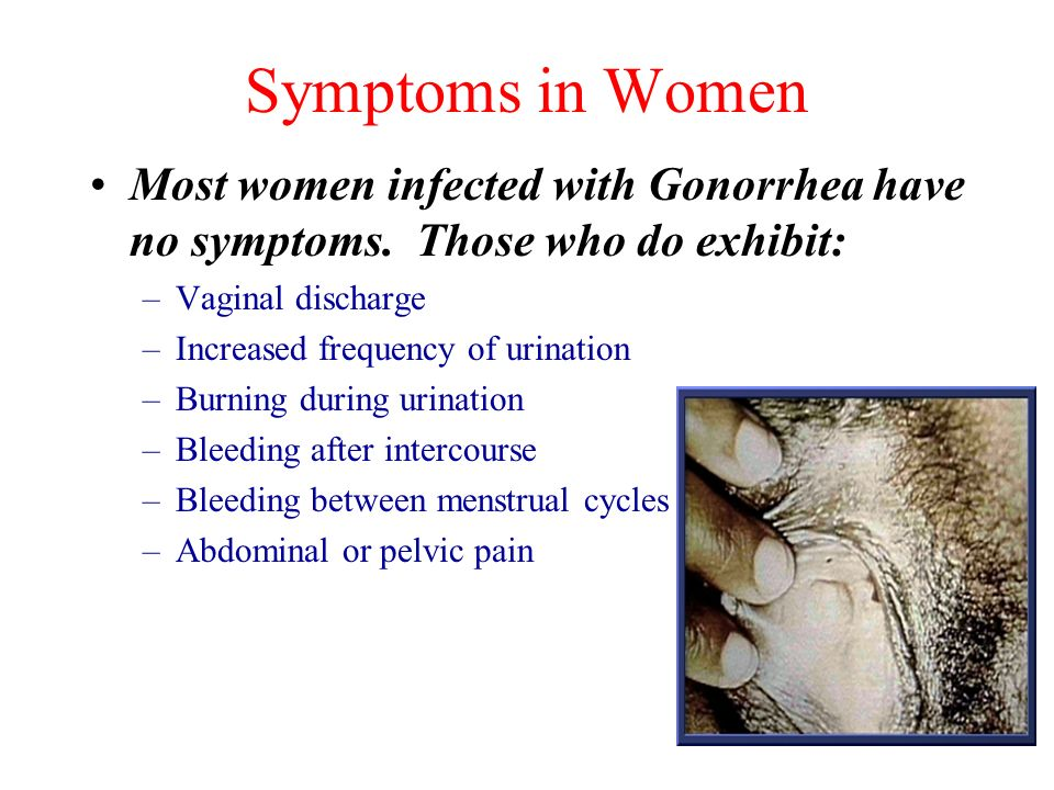 Symptoms in Women Most women infected with Gonorrhea have no symptoms. Those who do exhibit: Vaginal discharge.