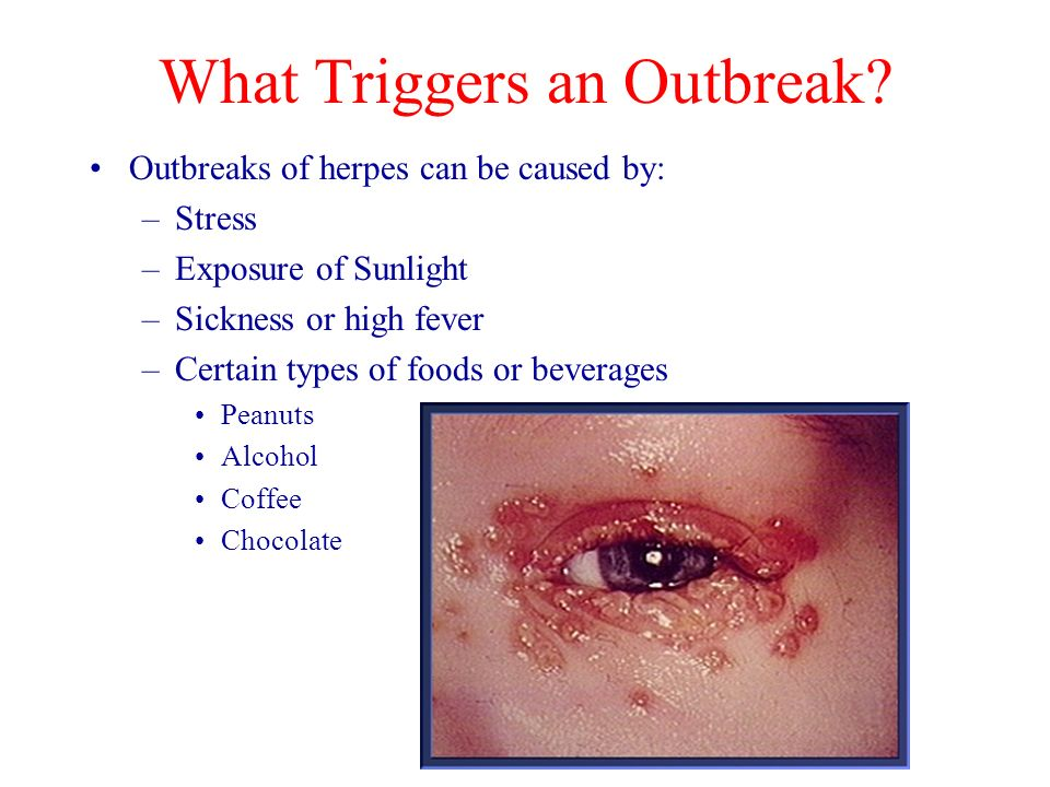 What Triggers an Outbreak