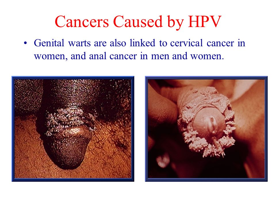 Cancers Caused by HPV Genital warts are also linked to cervical cancer in women, and anal cancer in men and women.