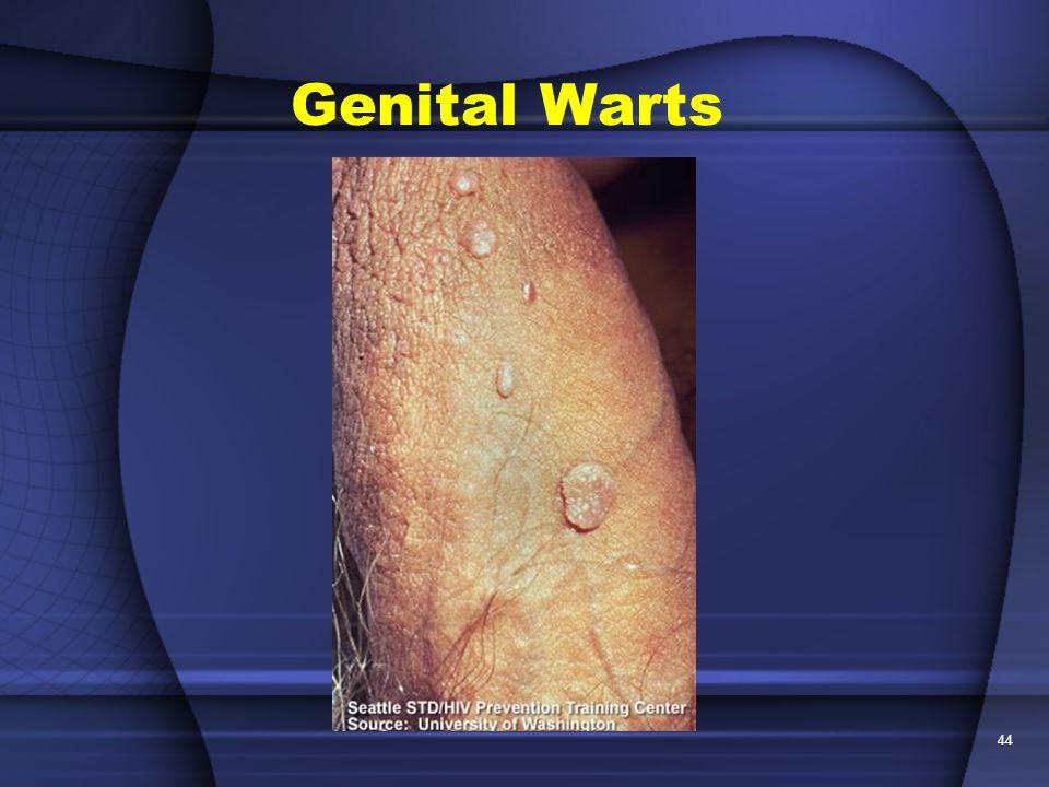 Mild Genital Warts Male. Herpes: Causes Diagnose & Treatments Mild Vaginal Warts