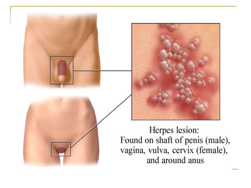 In women, sores can erupt in the vaginal area, external genitals, buttocks, anus or cervix.