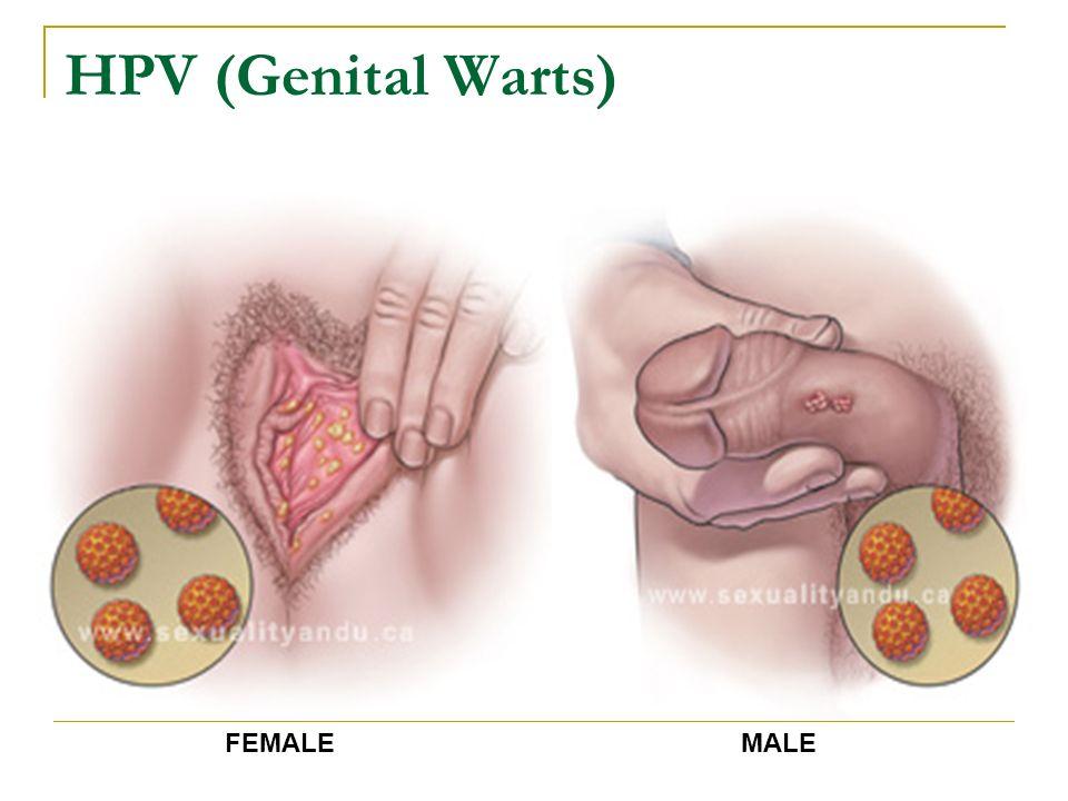 HPV (Genital Warts) FEMALE MALE