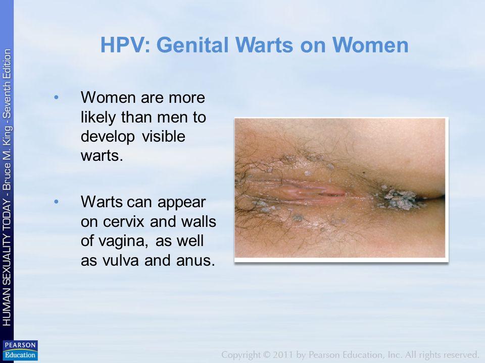 Female gential warts
