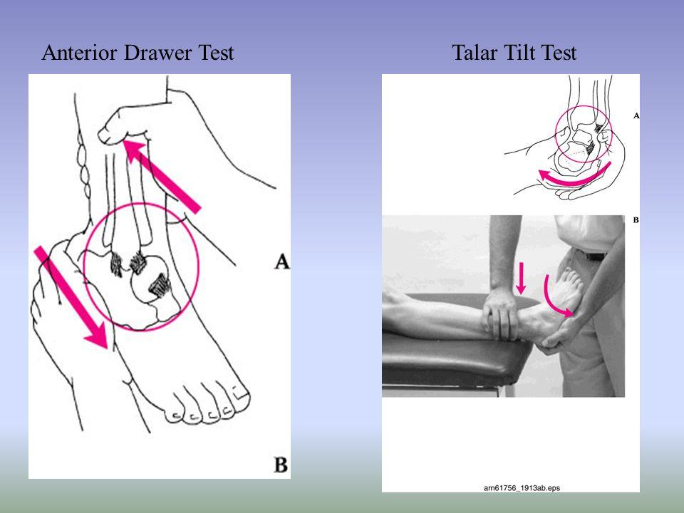 Anterior Drawer Test Talar Tilt Test
