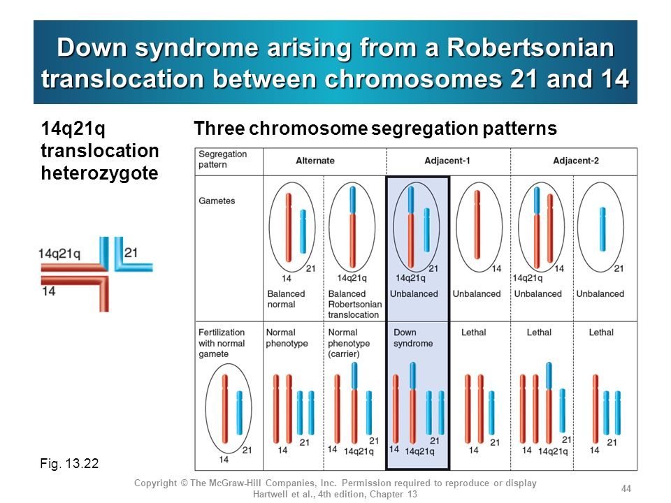 Down syndrome arising from a Robertsonian translocation between chromosomes 21 and 14