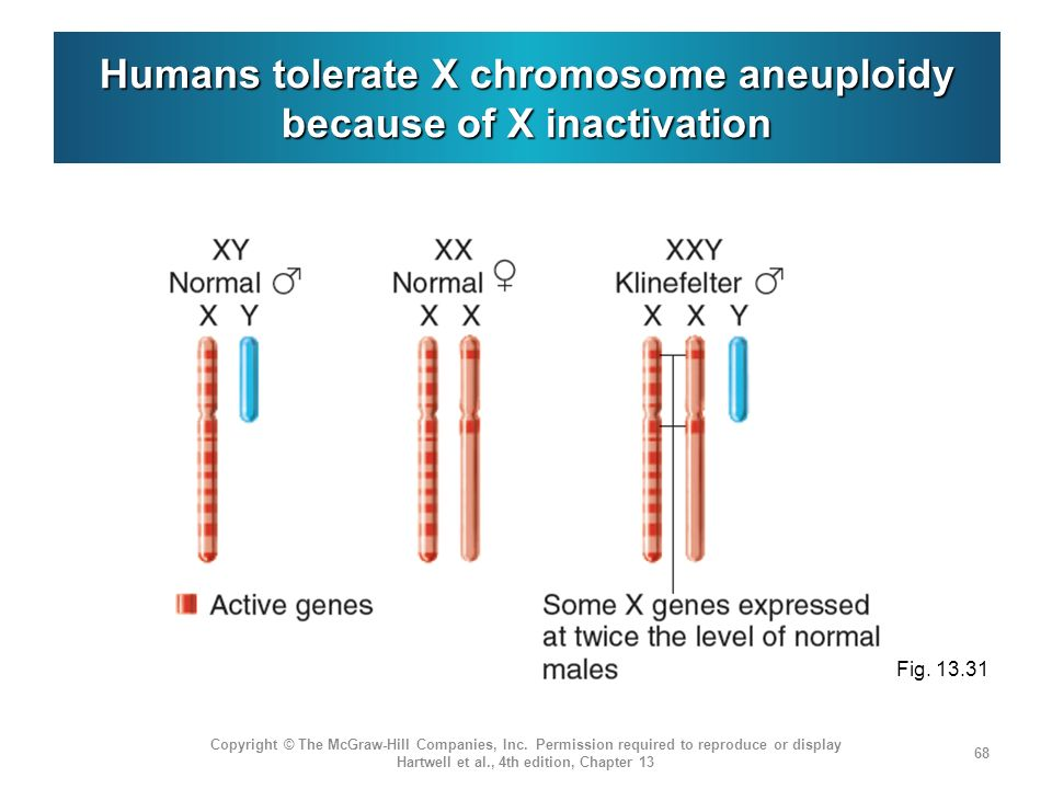 Humans tolerate X chromosome aneuploidy because of X inactivation