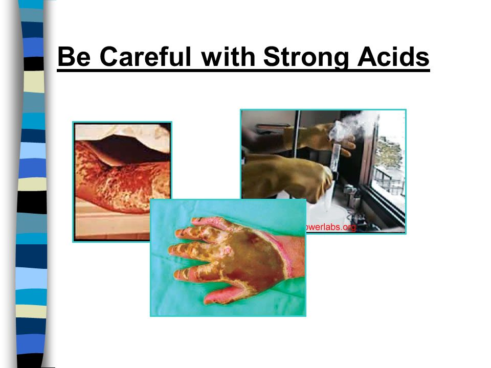 Be Careful with Strong Acids